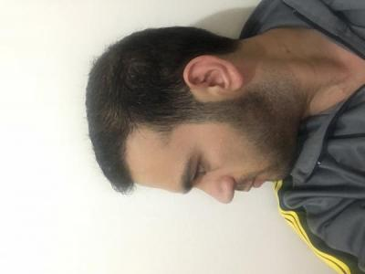 fue-hair-transplant-turkey (15)