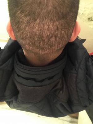 fue-hair-transplant-turkey (17)