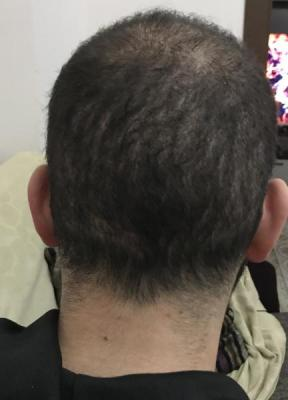 fue-hair-transplant-turkey (2)