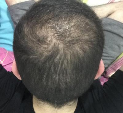 fue-hair-transplant-turkey (23)