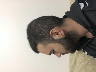fue-hair-transplant-turkey (24)