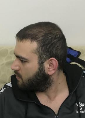 fue-hair-transplant-turkey (27)
