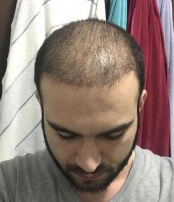 fue-hair-transplant-turkey (28)