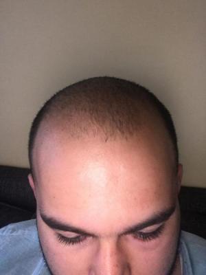 fue-hair-transplant-turkey (30)
