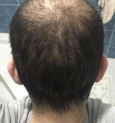 fue-hair-transplant-turkey (7)