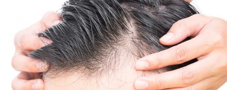 hair-implant-in-turkey