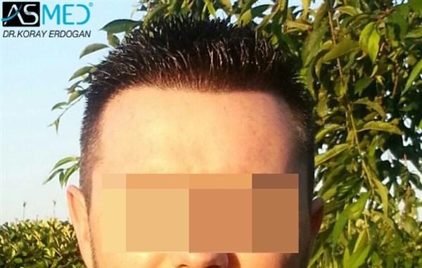 hair-plugs (1)