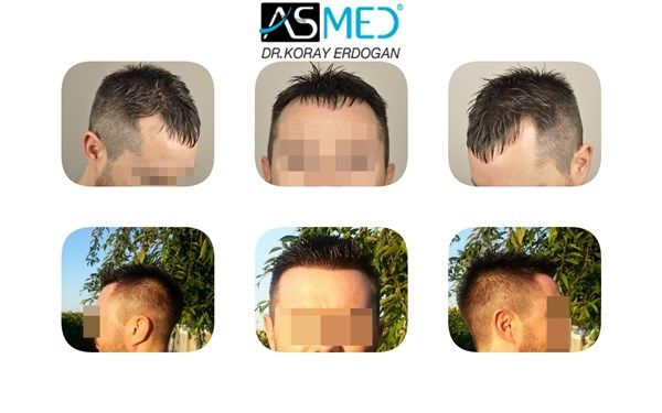 ASMED(KORAY ERDOGAN)-3005 GRAFTS