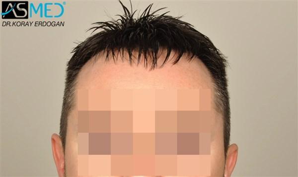 hair-plugs (4)