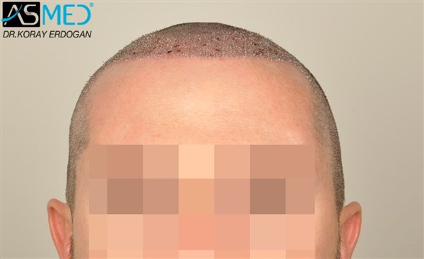 hair-plugs (5)