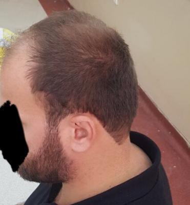 hair regrowth (1)