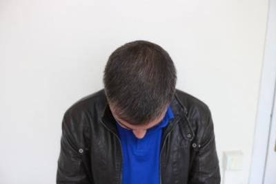 hair-restoration-in-turkey (1)