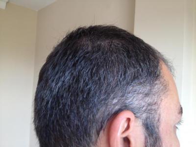hair-restoration-in-turkey (10)
