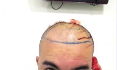 hair-restoration-in-turkey (12)
