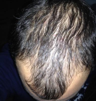 hair-restoration-in-turkey (3)