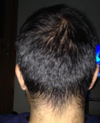 hair-restoration-in-turkey (4)