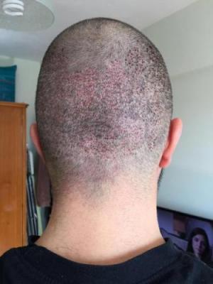 hair-restoration-in-turkey (7)