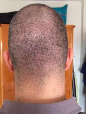 hair-restoration-in-turkey (8)
