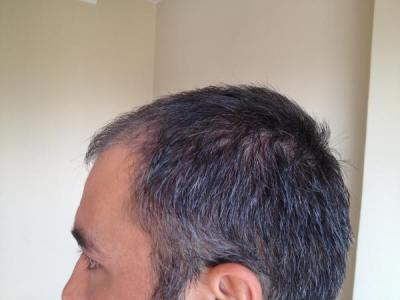 hair-restoration-in-turkey (9)