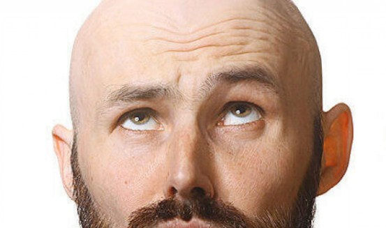 THE FAVORITE OF THE ARABS: HAIR TRANSPLANT THAT DOES NOT REQUIRE SHAVING