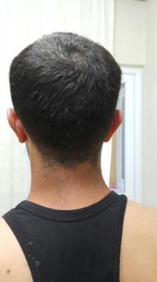 hair-transplant (1)