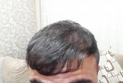 hair-transplant (10)