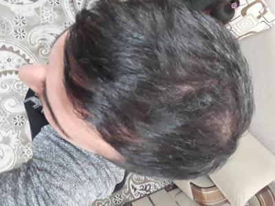 hair-transplant (14)