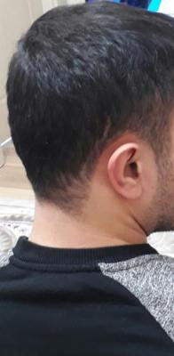 hair-transplant (15)