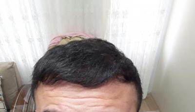 hair-transplant (16)