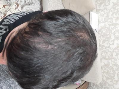 hair-transplant (17)