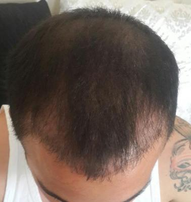 hair-transplant (2)