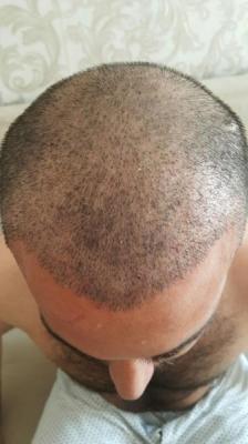 hair-transplant (20)