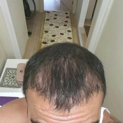 hair-transplant (21)