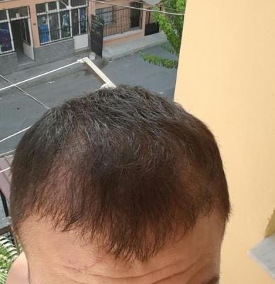 hair-transplant (22)