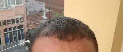 hair-transplant (23)