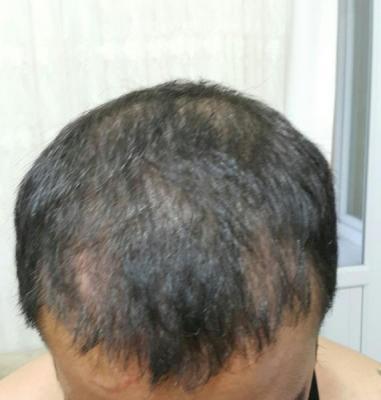 hair-transplant (24)