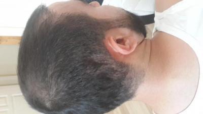 hair-transplant (5)