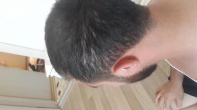 hair-transplant (6)
