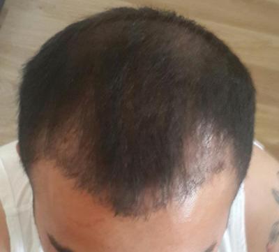 hair-transplant (7)