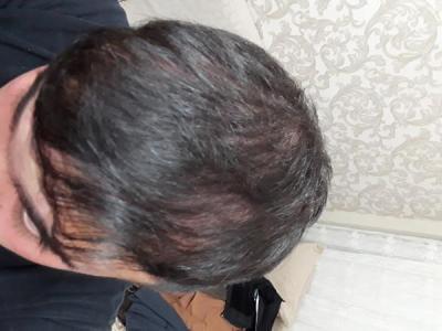 hair-transplant (9)