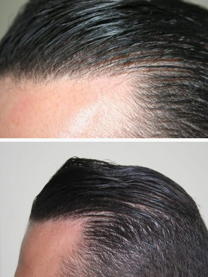 hair-transplant-best-results (1)