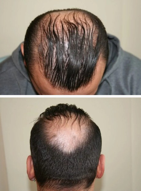 hair-transplant-best-results (3)
