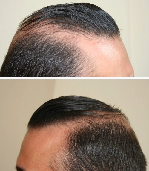 hair-transplant-best-results (4)