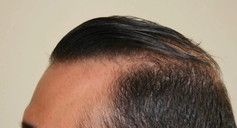 hair-transplant-best-results (5)