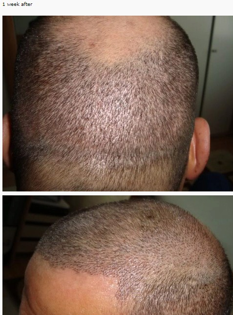 hair-transplant-best-results (6)