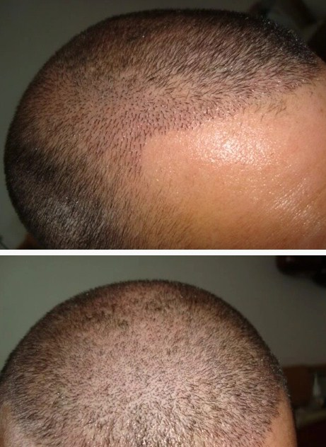 hair-transplant-best-results (7)