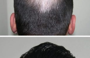 hair-transplant-best-results (8)