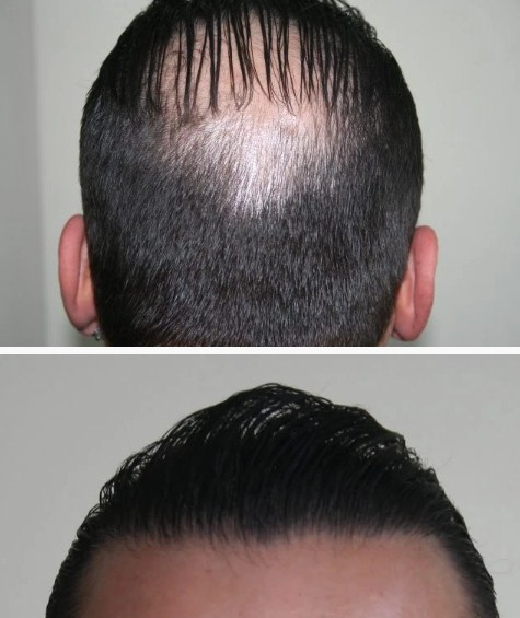 PH. D. KESER-2500 GRAFTS FUE