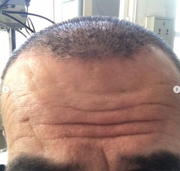 hair-transplant-in-men (2)