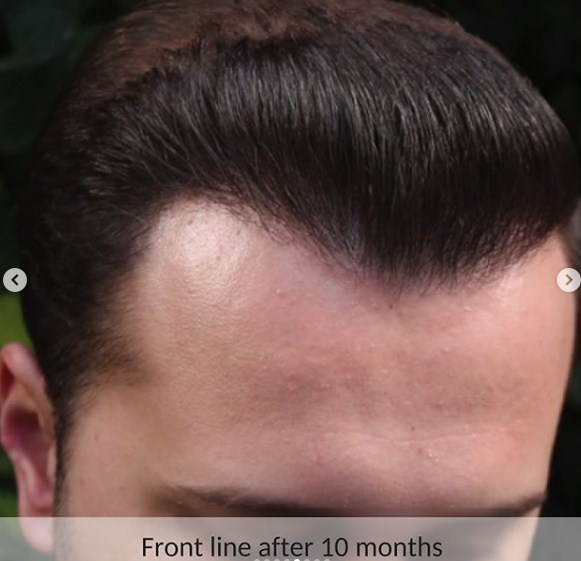 hair-transplant-in-turkey (1)